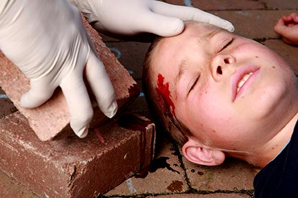 Children like this injured child are frequently hurt while on the property of another, sometimes due to a dangerous condition on the property or lack of a warning sign. If you or your child has been hurt on someone's property, call a Baton Rouge Premises Liability Lawyer today for an assessment of your case.